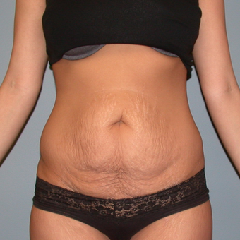 35-44 year old man treated with Tummy Tuck before 3460921