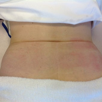 55-64 year old woman treated with Reaction for Skin Tightening before 2293187