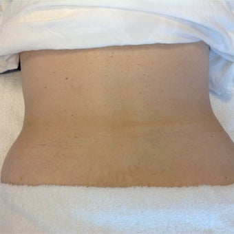 55-64 year old woman treated with Reaction for Skin Tightening after 2293187