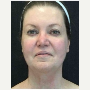 55-64 year old woman treated with Ultherapy before 3179965