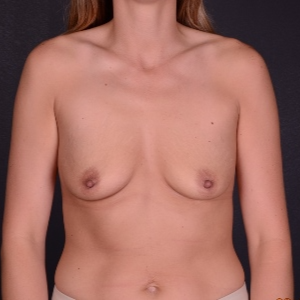 25-34 year old woman treated with Mentor Breast Implants before 3240125