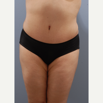 25-34 year old woman treated with Tummy Tuck after 3590386