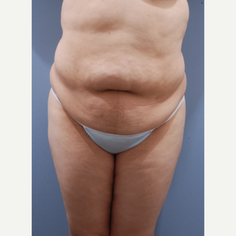25-34 year old woman treated with Tummy Tuck before 3590386