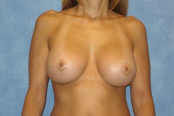 Breast Implant Exchange - Saline Implants to Silicone Implants after 295868