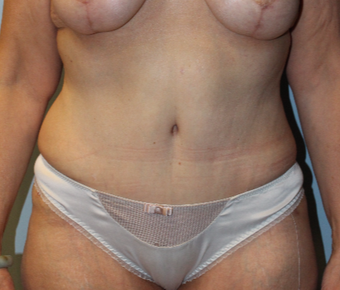 45-54 year old woman treated with Tummy Tuck after 3768932