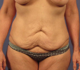 45-54 year old woman treated with Tummy Tuck before 3768932