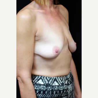 45-54 year old woman treated with Inspira Breast Implants before 2706342
