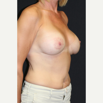 45-54 year old woman treated with Inspira Breast Implants after 2706342