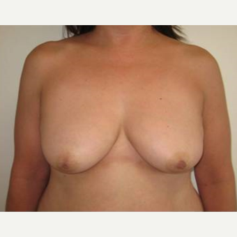 45-54 year old woman treated with Breast Lift with Implants before 3726257