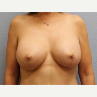 45-54 year old woman treated with Breast Lift with Implants after 3726257