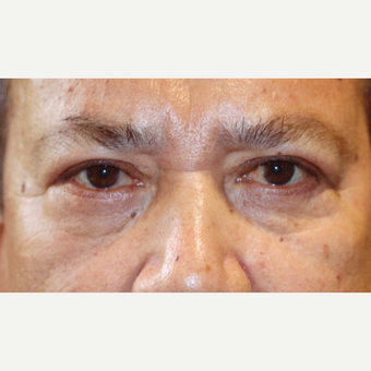 55-64 year old man treated with Blepharoplasty Surgery after 3589260
