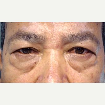 55-64 year old man treated with Blepharoplasty Surgery before 3589260
