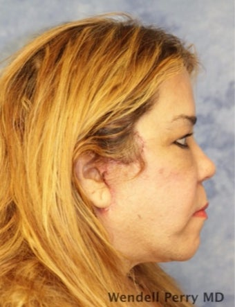 45-54 year old woman treated with Facelift after 3359445