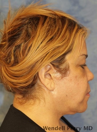 45-54 year old woman treated with Facelift before 3359445
