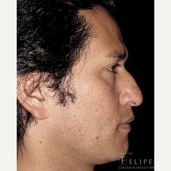 25-34 year old man treated with Rhinoplasty before 3413941
