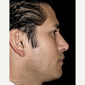 25-34 year old man treated with Rhinoplasty after 3413941