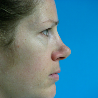 25-34 year old woman treated with Rhinoplasty before 3570266