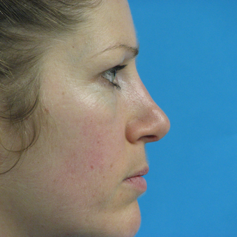 25-34 year old woman treated with Rhinoplasty after 3570266