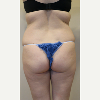 25-34 year old woman treated with Liposuction with smart -lipo and vaser assisted before 2055726