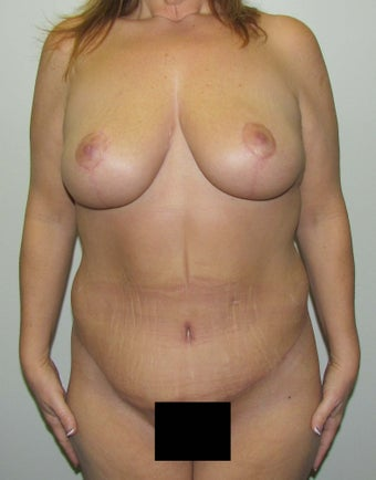 Mommy Makeover:  Breast Lift and Tummy Tuck (Abdominoplasty) for this 45 Year Old Female 1268939