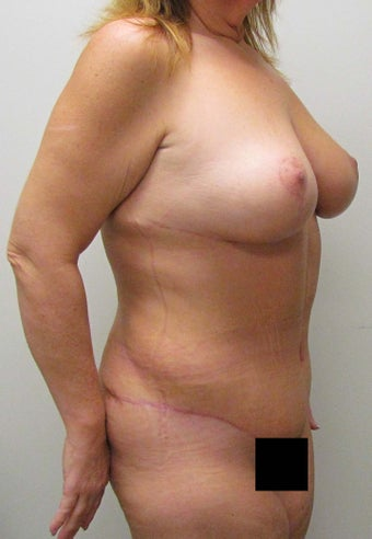 Mommy Makeover:  Breast Lift and Tummy Tuck (Abdominoplasty) for this 45 Year Old Female