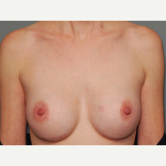 29 y/o Inframammary Sub Muscular Breast Augmentation after 3066181