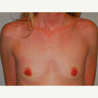29 y/o Inframammary Sub Muscular Breast Augmentation before 3066181