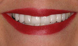Dark, crooked bridge and crowns treated with new porcelain bridge, crowns and veneers. after 1326619