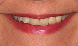 Dark, crooked bridge and crowns treated with new porcelain bridge, crowns and veneers. before 1326619