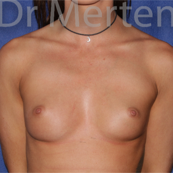 18-24 year old woman treated with Breast Augmentation before 3551985