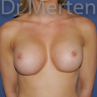 18-24 year old woman treated with Breast Augmentation after 3551985