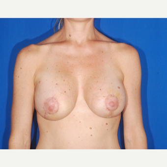 35-44 year old woman treated with Breast Lift after 3696235
