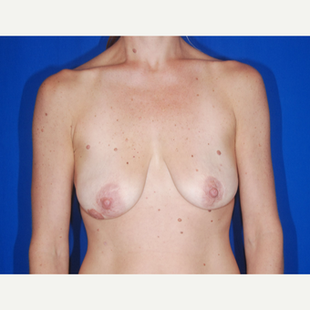 35-44 year old woman treated with Breast Lift before 3696235