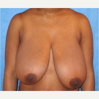 25-34 year old woman treated with Breast Reduction before 3727273