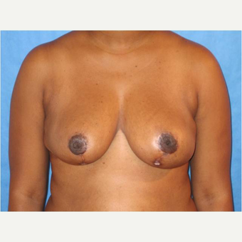 25-34 year old woman treated with Breast Reduction after 3727273