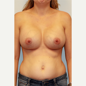 25-34 year old woman treated with Breast Implants after 3027276