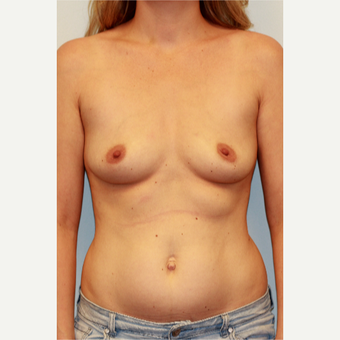 25-34 year old woman treated with Breast Implants before 3027276