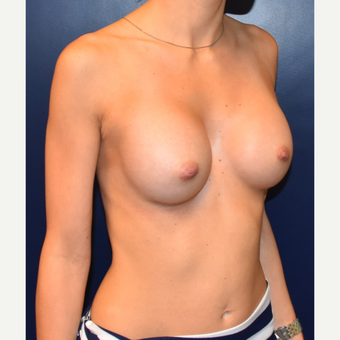 18-24 year old woman treated with Sientra Breast Implants after 3043707
