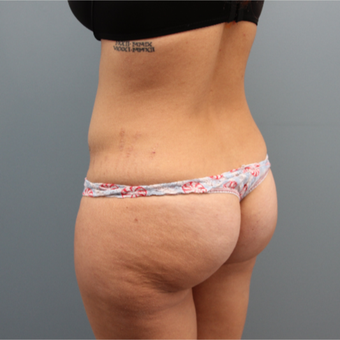 33 year old woman had a Brazilian Butt Lift before 3467352
