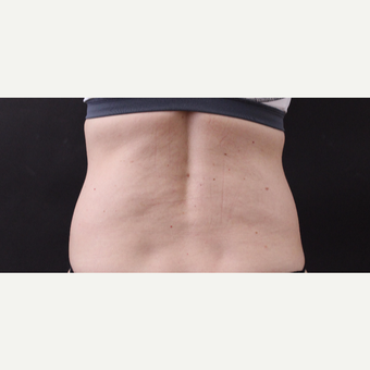49 year old woman treated with CoolSculpting before 3630248