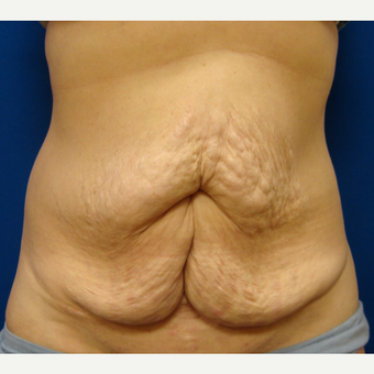 45-54 year old woman treated with Tummy Tuck before 3669502