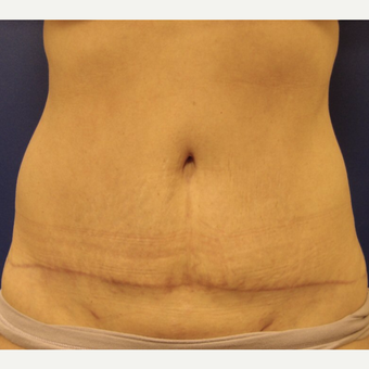 45-54 year old woman treated with Tummy Tuck after 3669502