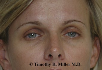 Fat augmentation for facial rejuvenation before 1448272