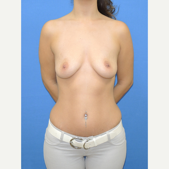 25-34 year old woman treated with Breast Augmentation before 3112658
