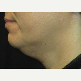 45-54 year old woman treated with Kybella before 3153613