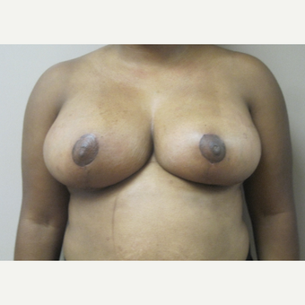 Breast Reduction after 3815400