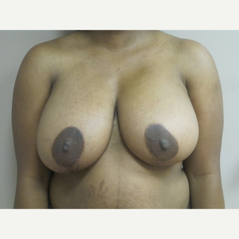 Breast Reduction before 3815400