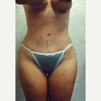 Tummy Tuck after 1892059