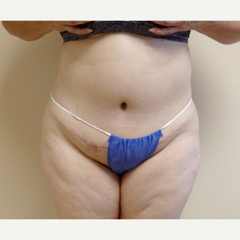 45-54 year old woman treated with Tummy Tuck after 3191770
