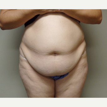 45-54 year old woman treated with Tummy Tuck before 3191770